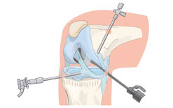 Percutaneous Endoscopic Lumbar Discectomy Img